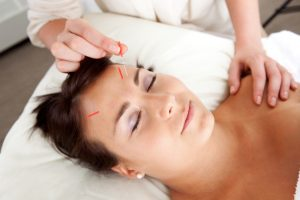 Needle being stimulated in face of young attractive patient